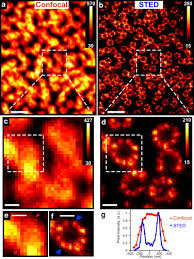 sted rings sted microscopy with optimized labeling density reveals 9 fold