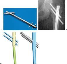 subtrochanteric femur fractures reconstruction nailing