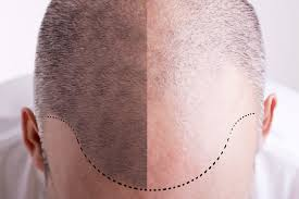 male pattern baldness how to know if you u0027re going bald