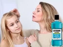 got head lices 25 amazing home remedies to kill them fast web