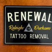 renewal tattoo removal tattoo removal 7920 acc blvd raleigh