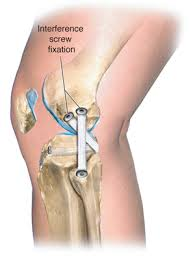 Lateral Patellar Ligament Lateral Collateral Posterolateral Ligament Injuries Noyes Knee