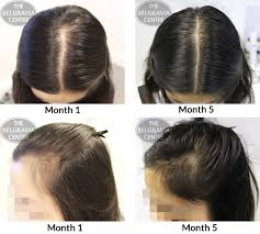 womans hair thinning on sides success story alert new female hair loss treatment entry