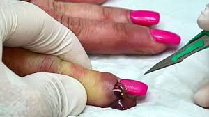 worst nail infections of all time youtube