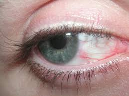 eyes sensitive to light treatment dry eyes causes and treatments of dry eyes rocket facts