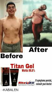 after before titan gel works 999 titan gel r if symptoms persist