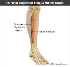 Top Foot Anatomy Digitorum Longus Muscle Strain