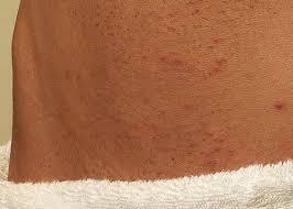 men shaved pubic hair image shaving pubic hair men insured by laura