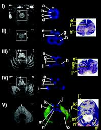 high resolution diffusion tensor imaging of the brain stem at 3 t