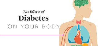 How Does Diabetes Cause Blindness The Effects Of Diabetes On Your Body