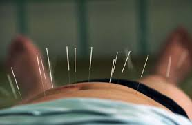 study of acupuncture for low stop taking drugs for lower back and do this instead