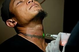 laser tato di jogja what were you inking inside a tattoo removal clinic jakarta globe