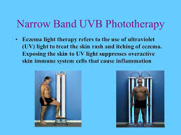 light therapy for eczema leow atomic chuan tse group1 ppt video online download