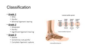 Anterior Fibular Ligament Lateral Ankle Sprains And Chronic Ankle Instability Ppt Video