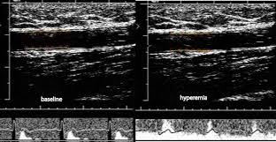 diagnostic use of sonography in the evaluation of hypertension