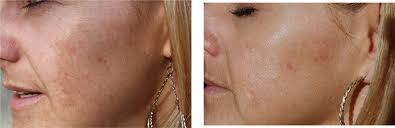 deep penetrating light therapy device clinical results revive light therapy anti aging system before and
