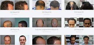 dhi hair transplant reviews dhi delhi hair loss clinic in new delhi whatclinic com