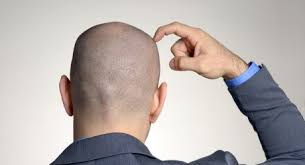 prurito testa e corpo quali sono le cause prurito alla testa come eliminarlo