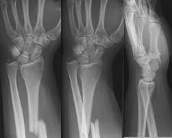 Fibular Avulsion Eponymous Fractures U2022 Litfl U2022 Injury Database U2022 Medical Eponym Library
