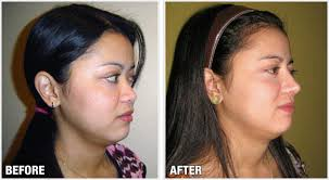 Challenge Through Your Nose Before After Rhinoplasty Cosmetic Surgery By Dr Raynald