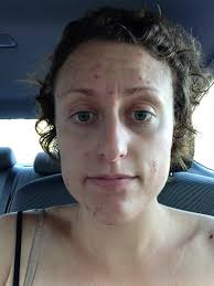 Face Acne Map Can Dida I Beat Acne U2022 Performing Woman