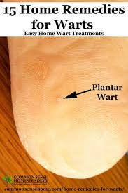 Home Remedies For Planters Warts by 15 Home Remedies For Warts Easy Home Wart Treatments