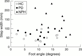 comparative analysis of the gait disorder of normal pressure