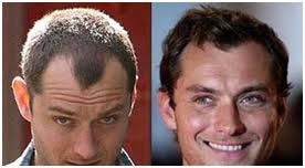 india hair hair transplant india india hair transplant surgery hair treatment