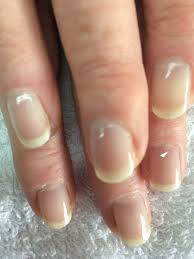 best treatments for nail recovery after acrylics blu butterfly