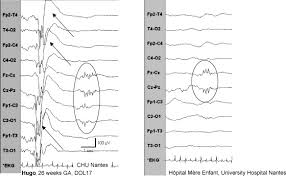 bureau des stages chu nantes pathological features of neonatal eeg in preterm babies born before