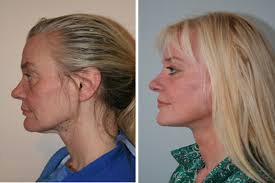 hairstyles that cover face lift scars facelift necklift london plastic surgeon baaps council member