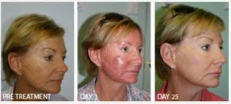 blue light therapy for skin cancer blue light therapy results picture blue light therapy pinterest
