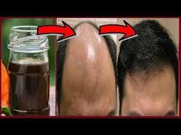 kalonji for hair growth the 25 best kalonji oil ideas on pinterest kalonji oil for hair