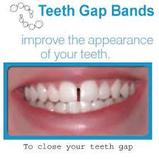 goody bands for teeth teeth gap bands gapped teeth