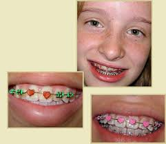 Comfort Dental Orthodontics Bakersfield Ca 17 Best Cool Stuff For Braces U0027n Teeth Images On Pinterest Brace