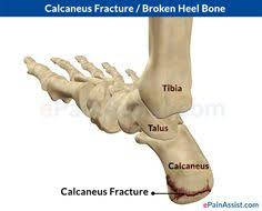 Os Calcaneus The Calcaneus Also Constitutes The Region Known As The Heel This