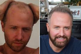 antony cottons hair transplant having a hair transplant has been scientifically proved to make