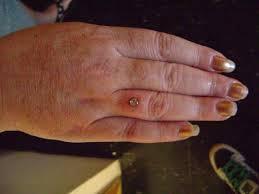 dermal piercing ring finger best ring 2017