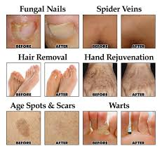 cosmetic laser delaware oh foot doctor