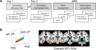 delay dependent contributions of medial temporal lobe regions to