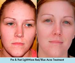 blue and red light therapy for acne lightwave led therapy cosmetic laser md