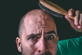 percentae of men with thinning hair at 60 how long does it take to go bald the answer may surprise you