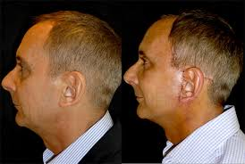 hairstyles that cover face lift scars michael 55 mens facelift neck lift