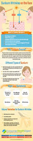 sunburn wrinkles types causes symptoms remedies and treatments