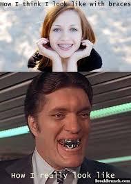 Brace Face Meme - image result for funny braces memes funny pinterest memes