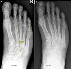 Talar Coalition Rare Proximal Diaphyseal Stress Fractures Of The Fifth Metatarsal
