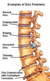suffering with the of degenerative disc disease