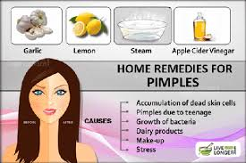 what s the best way to cure pimple in health quora