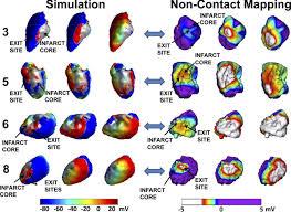 virtual electrophysiological study in a 3 dimensional cardiac
