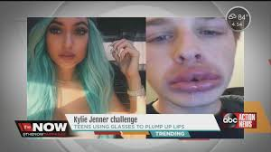 Challenge News Parents Warned Against Jenner Challenge